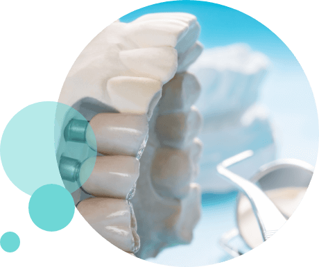 Clínica Dental Sedano | Implantes Dentales